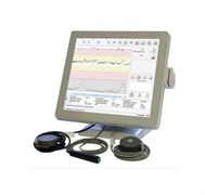 """Монитор фетальный """"Сономед-200"""" с сенсорным экраном и термопринтером для одноплодной беременности"""